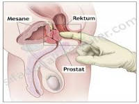 Prostat Kanseri Hakkında Yanlış Bilinen 10 Madde